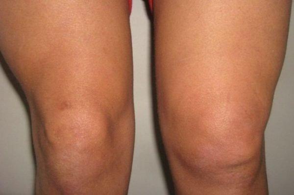 различные коленки