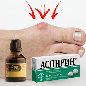 аспирин с йодом