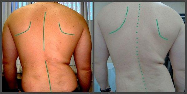 последняя стадии искривления спины