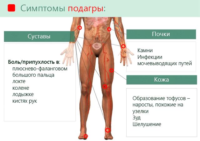 симптомы подагры