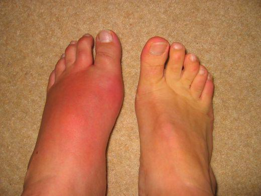 фото подагры на ступнях