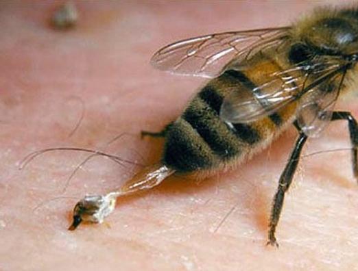 Лечение ядом пчел