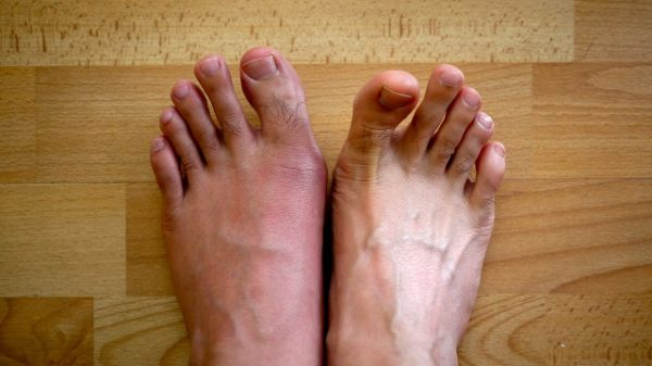 здоровая нога и больная