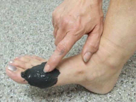 натирать активированный уголь на больное место