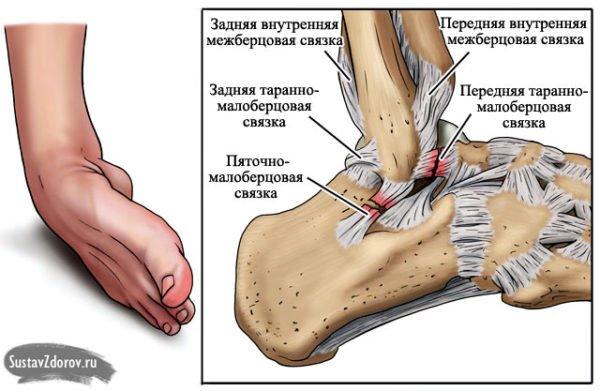 кости ноги