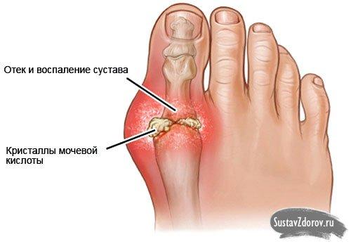 болезнь сустава большого пальца ноги