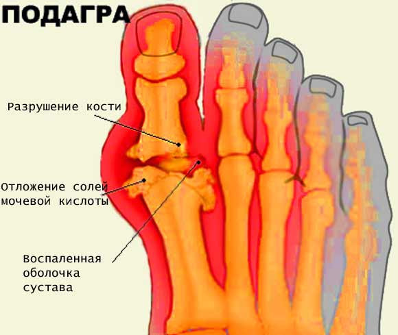 разрушение сустава пальца ноги