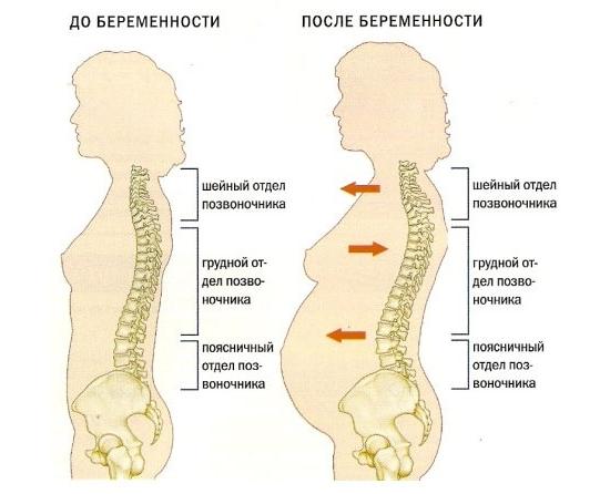боли в позвоночнике при беременности