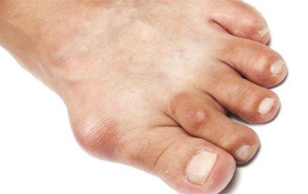 больной большой палец на ноге