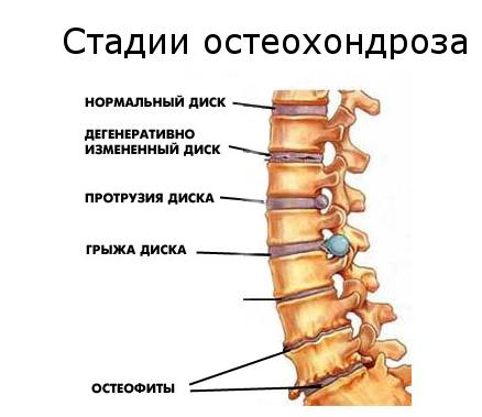 стадии поясничного остеохондроза