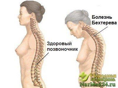 Болезнь Бехтерева симптомы у женщин лечение