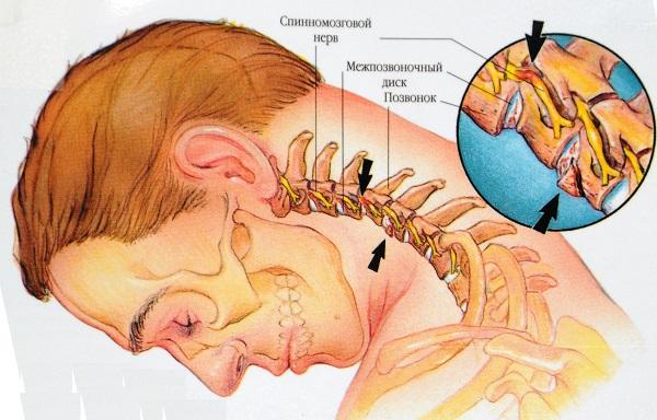 как выглядит шейный остеохондроз позвоночника