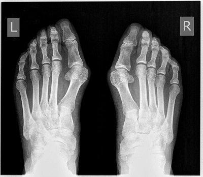 рентген нижних ног