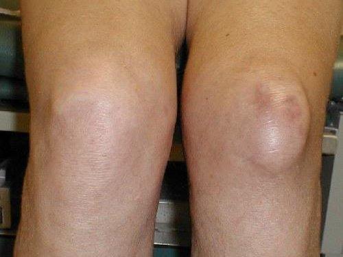 Опухшая коленка