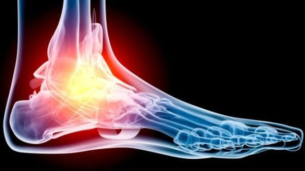 Перелом и вывих голеностопа признаки лечение и восстановление