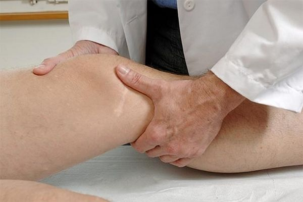Синовит правого коленного сустава что это такое