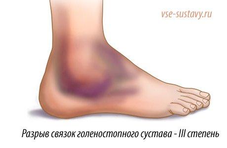 гемартроз ступни