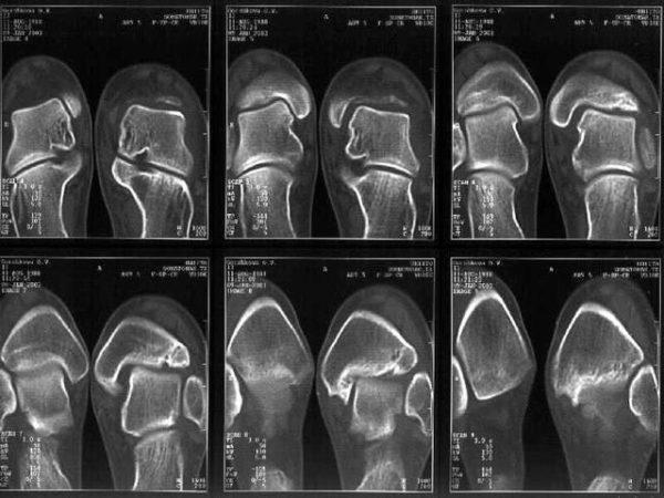Привычный вывих лучезапястного сустава лечение