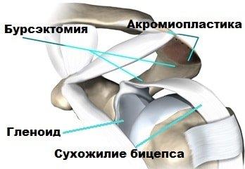 акромиопластика