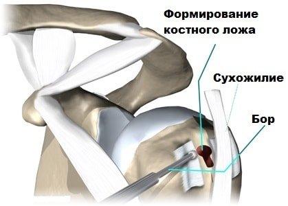 Формирование костного ложа