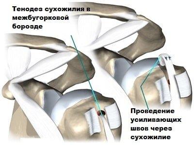 Тенодез сухожилия