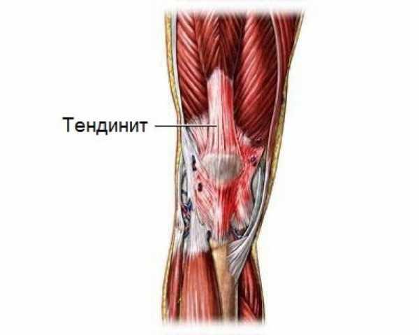 Дегенерация тканей сустава