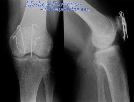 Диагностика повреждений связок