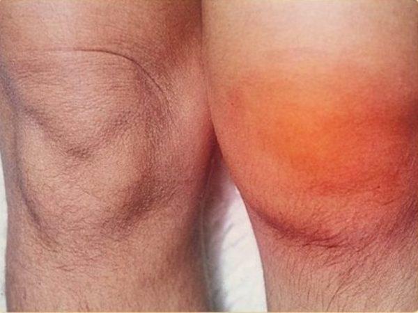 распухшее колено