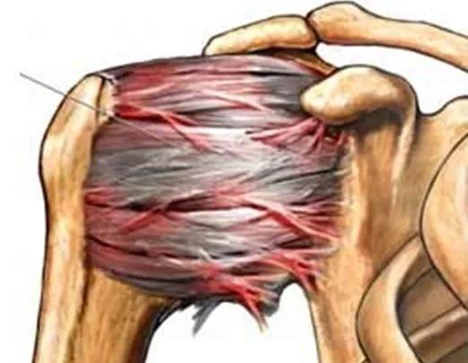 Плечелопаточный периартроз