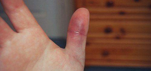 Ушиб большого пальца