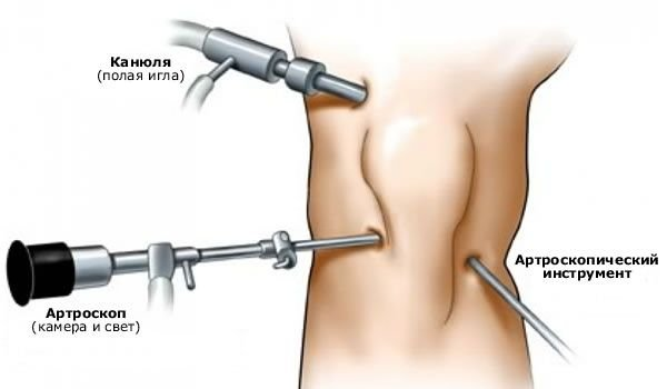 Послеоперационное восстановление коленного сустава