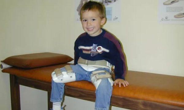 ребенок с болезнью Пертеса