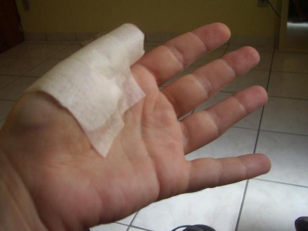 Болит основание указательного пальца правой руки