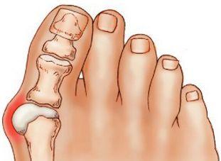 Причины боли в большом пальце ноги и способы ее устранения