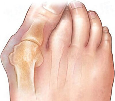Чем лечить воспаление большого пальца на ноге