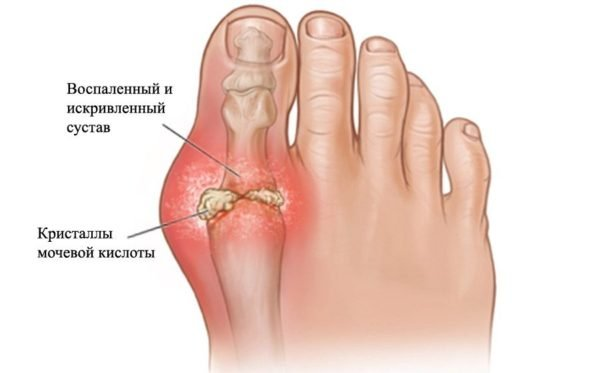 опухоль большого пальца ноги