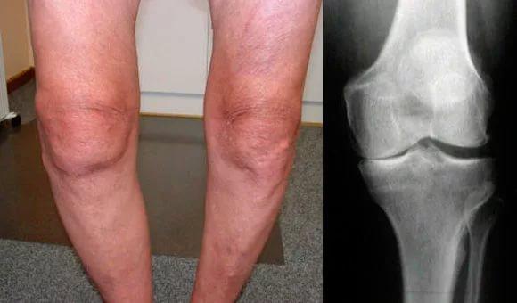 деформированное колено