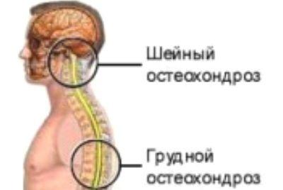 остеохондроз шейно-грудного отдела