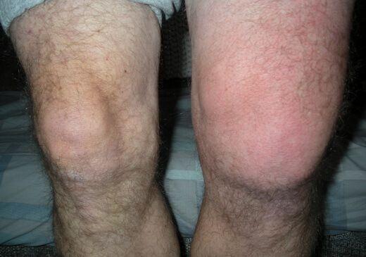откачка жидкости из колена