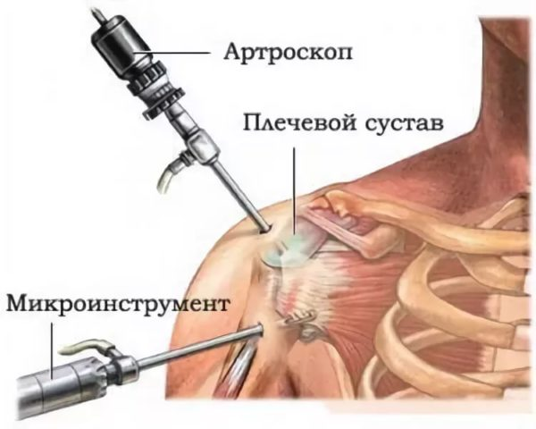 периартрит хирургия