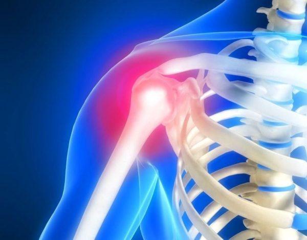 Плексит плечевого сустава как лечить