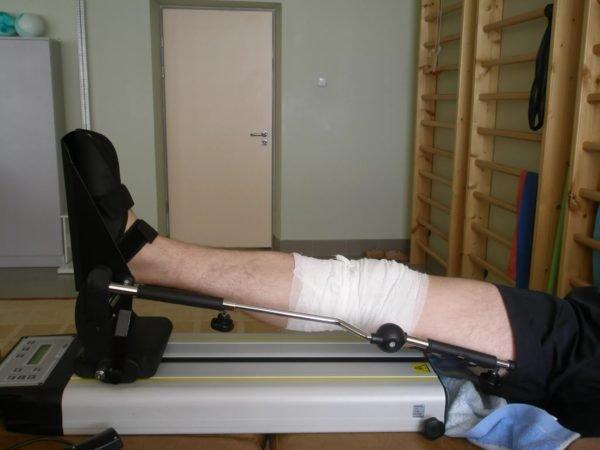 после операции на колене