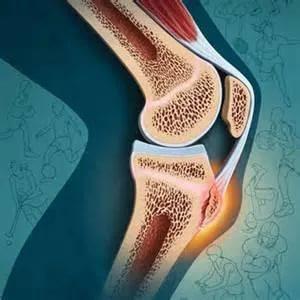 разрастание костной ткани