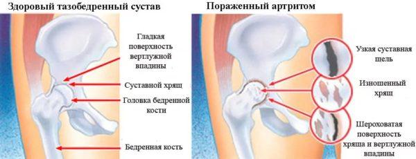 схема гнойный артрит