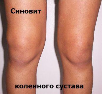 Синовит колена может доставить немало проблем