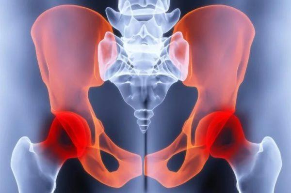 тазобедренный сустав болит