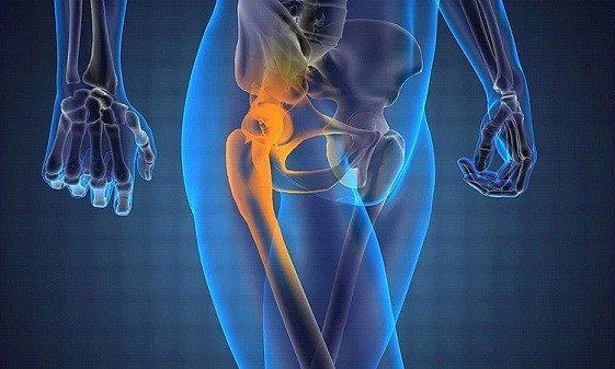 Болезнь Пертеса у детей и взрослых: лечение, стадии, симптомы болезни тазобедренного сустава