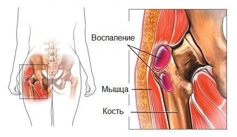 снятие отека при суставной боли