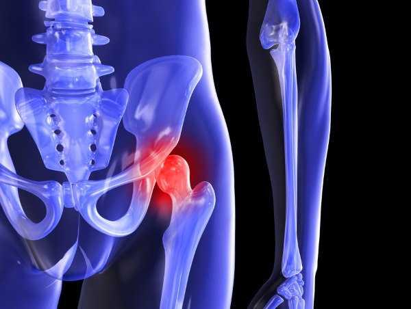 Воспаление тазобедренного сустава первые симптомы и лечение недуга
