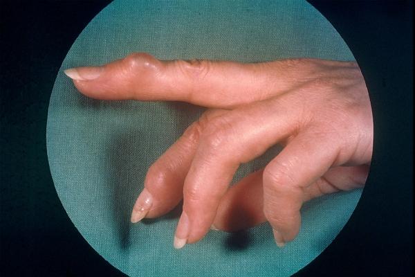 Узелки Гебердена и Бушара симптомы диагностика и лечение